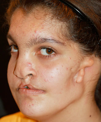 Photos of Facial Deformities http://lucidlimos.com/congenital-facial-deformities